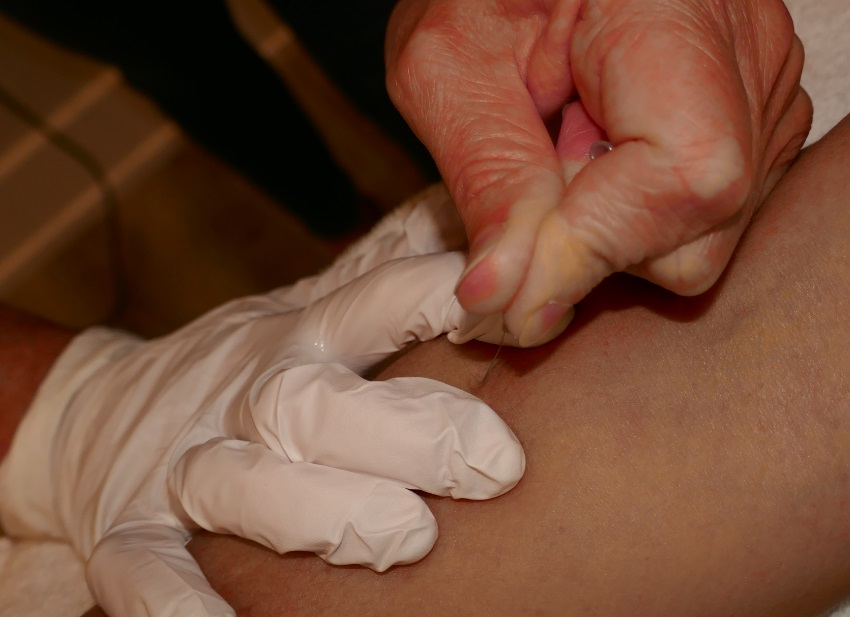 close-up of dry needling treatment at physiotherapy clinic